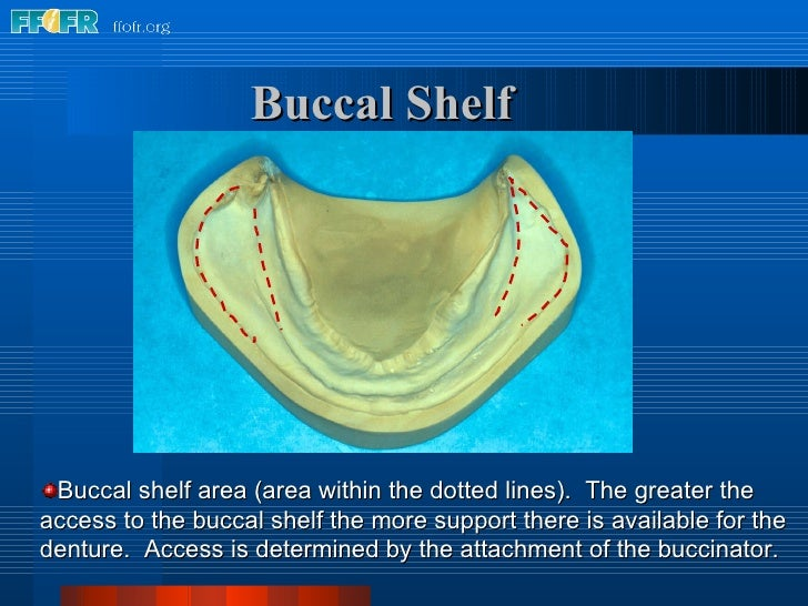 <ul><li>Buccal shelf area (area within the dotted lines).  The greater the access to the buccal shelf the more support the...