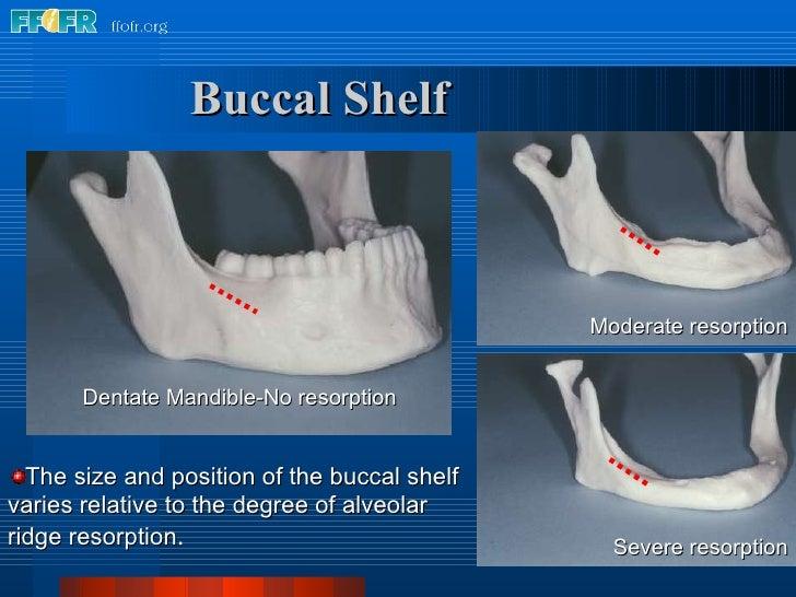 Buccal Shelf <ul><li>The size and position of the buccal shelf varies relative to the degree of alveolar ridge resorption ...