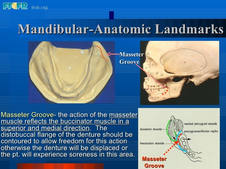 Mandibular-Anatomic Landmarks Masseter Groove - the action of the  masseter muscle reflects the buccinator muscle in a sup...