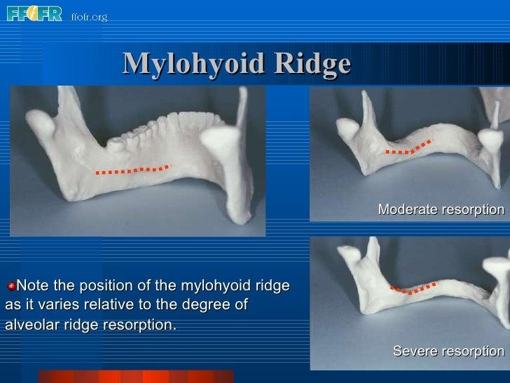 Mylohyoid Ridge <ul><li>Note the position of the mylohyoid ridge as it varies relative to the degree of alveolar ridge res...