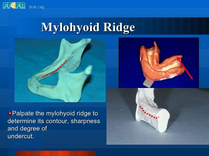 Mylohyoid Ridge <ul><li>Palpate the mylohyoid ridge to determine its contour, sharpness and degree of </li></ul><ul><li>un...