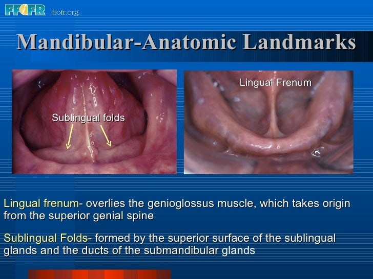 Lingual frenum - overlies the genioglossus muscle, which takes origin from the superior genial spine Sublingual Folds-   f...