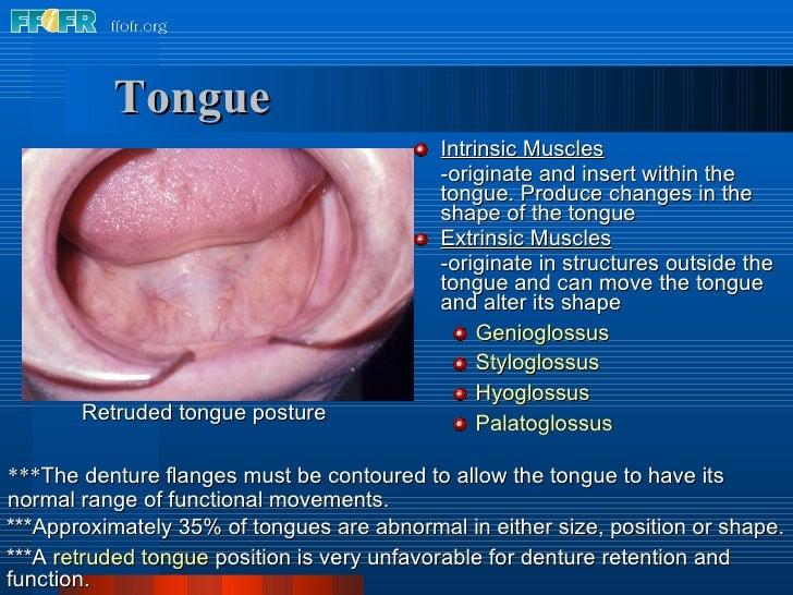 Tongue <ul><li>Intrinsic Muscles </li></ul><ul><li>-originate and insert within the tongue. Produce changes in the shape o...