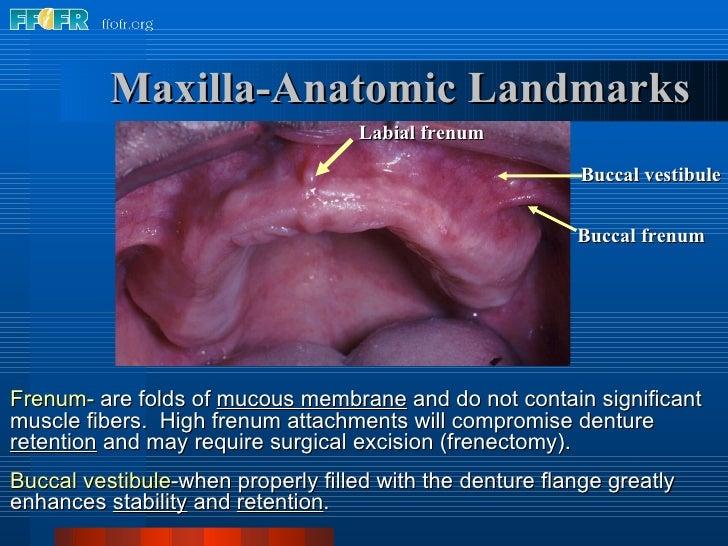 Labial frenum Buccal vestibule Buccal frenum Maxilla-Anatomic Landmarks Frenum-  are folds of  mucous membrane  and do not...