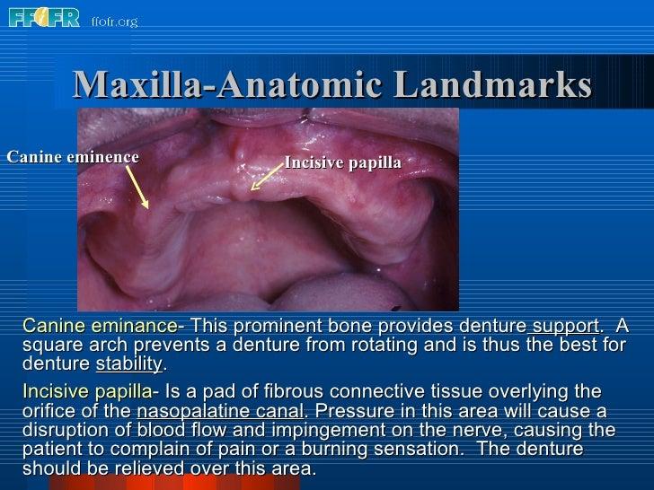 Incisive papilla Canine eminence Maxilla-Anatomic Landmarks Canine eminance - This prominent bone provides denture  suppor...