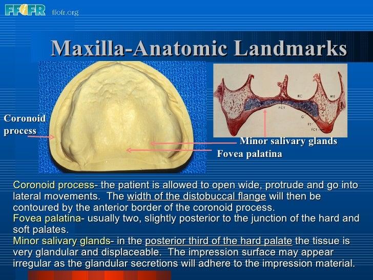 Coronoid process Maxilla-Anatomic Landmarks Fovea palatina Coronoid process - the patient is allowed to open wide, protrud...