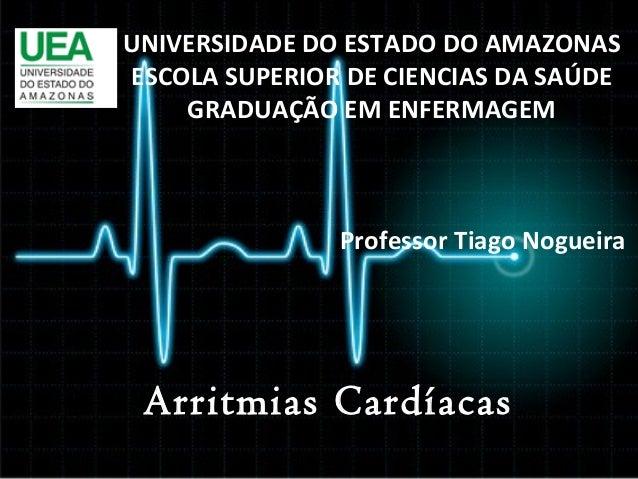 UNIVERSIDADE DO ESTADO DO AMAZONAS ESCOLA SUPERIOR DE CIENCIAS DA SAÚDE GRADUAÇÃO EM ENFERMAGEM  Professor Tiago Nogueira ...
