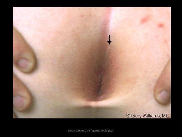Los tratamientos del hongo de las uñas por los preparados nacional