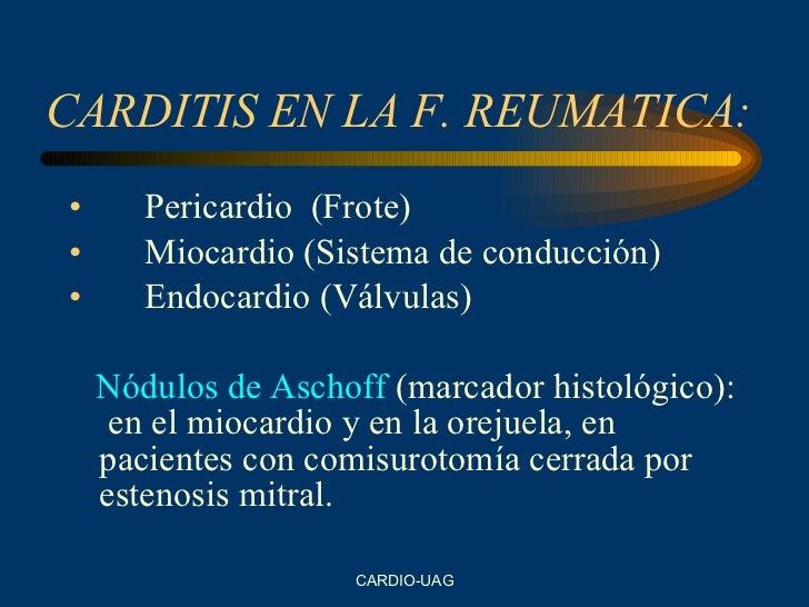 CARDITIS EN LA F. REUMATICA: <ul><li>Pericardio  (Frote) </li></ul><ul><li>Miocardio (Sistema de conducción) </li></ul><ul...