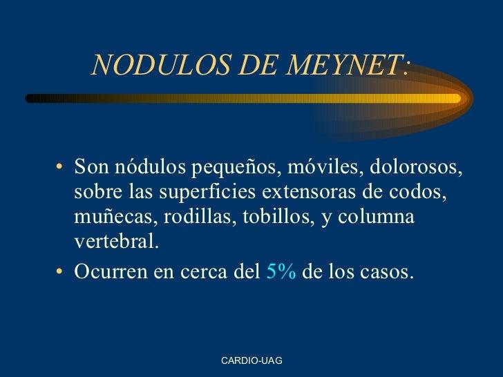 NODULOS DE MEYNET: <ul><li>Son nódulos pequeños, móviles, dolorosos, sobre las superficies extensoras de codos, muñecas, r...