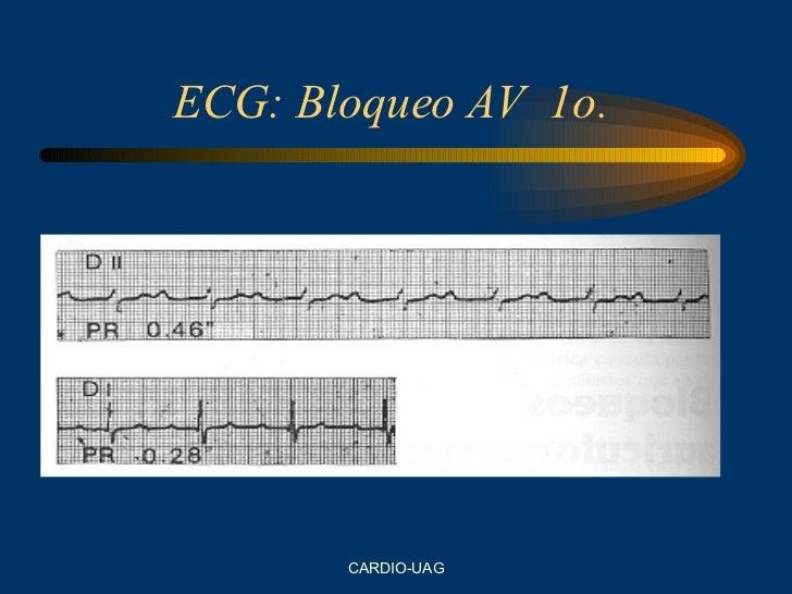 ECG: Bloqueo AV  1o.