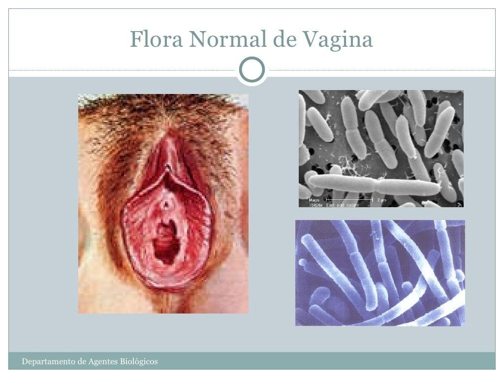 Vaginitiscolpitis