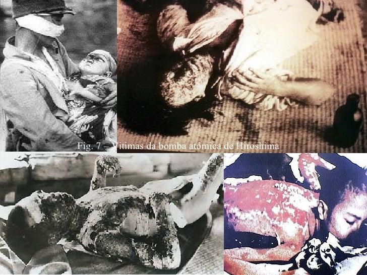 Fotos das vitimas da bomba atomica 11