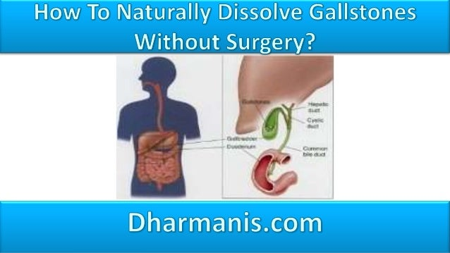 • The main reason why surgery is not preferred as a treatment for gallstones is because it involves the removal of the ent...