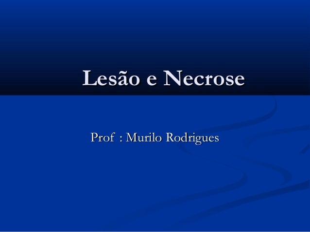Lesão e NecroseLesão e Necrose Prof : Murilo RodriguesProf : Murilo Rodrigues
