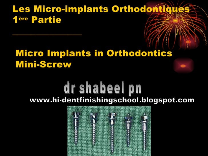 Les Micro-implants Orthodontiques 1 ère  Partie _______________  Micro Implants in Orthodontics  Mini-Screw  dr shabeel pn...