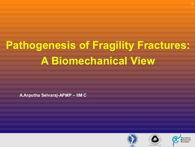 1  Pathogenesis of Fragility Fractures: A Biomechanical View A.Arputha Selvaraj-APMP – IIM C