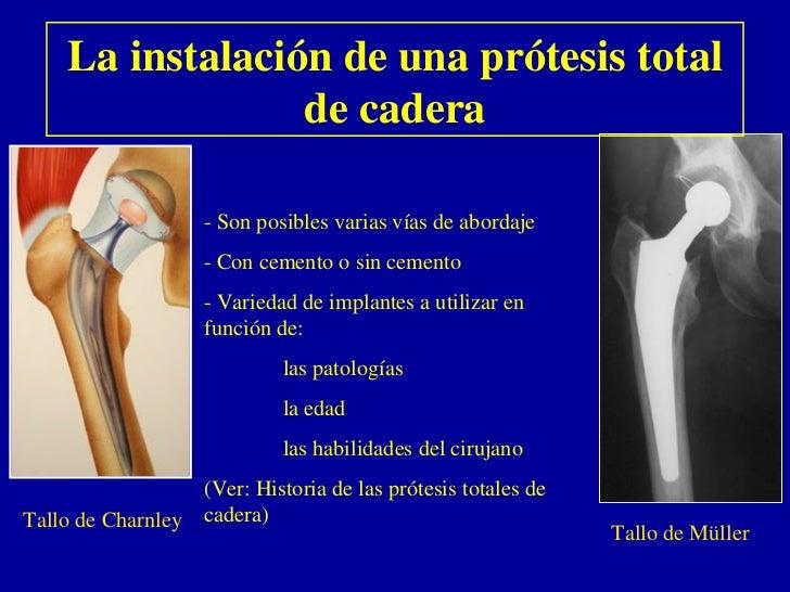La instalación de una prótesis total                  de cadera                    - Son posibles varias vías de abordaje ...