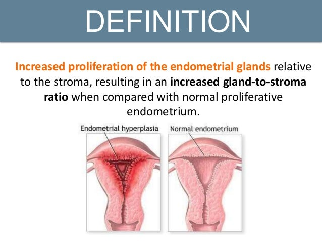 endometrial hyperplasia and carcinoma, Human Body