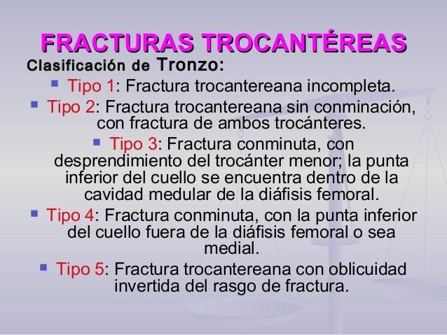 FRACTURAS TROCANTÉREASFRACTURAS TROCANTÉREAS Clasificación deClasificación de Tronzo:  Tipo 1: Fractura trocantereana inc...