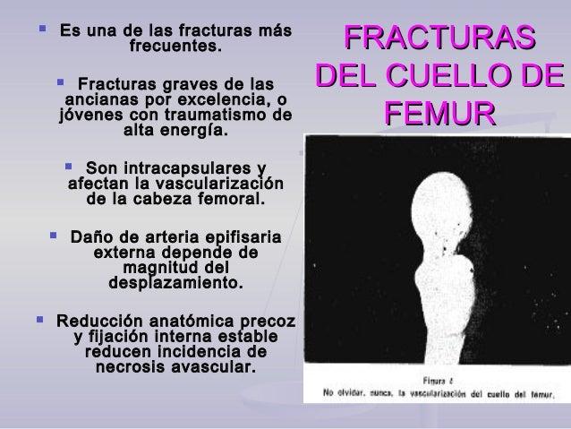 FRACTURASFRACTURAS DEL CUELLO DEDEL CUELLO DE FEMURFEMUR  Es una de las fracturas más frecuentes.  Fracturas graves de l...