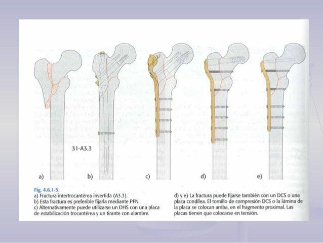 FRACTURAS DEL CUELLO DEFRACTURAS DEL CUELLO DE FEMURFEMUR CLASIFICACIÓN Clasificación anatómicaClasificación anatómica :: ...