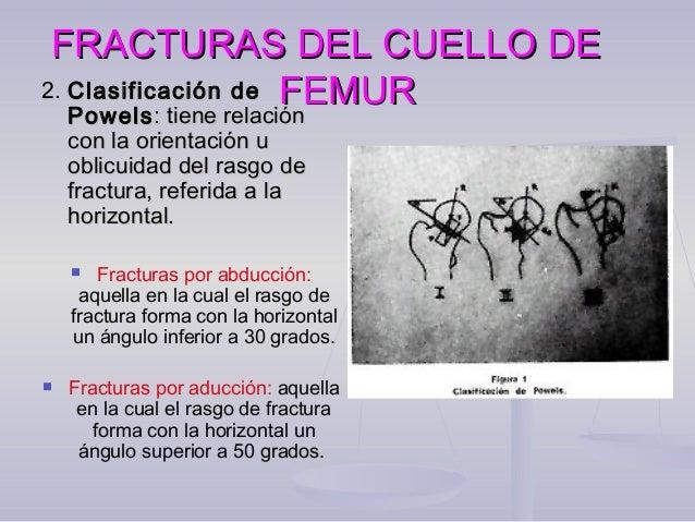 FRACTURAS DEL CUELLO DEFRACTURAS DEL CUELLO DE FEMURFEMUR Clasificación de Garden:Clasificación de Garden: 1. Incompleta: ...