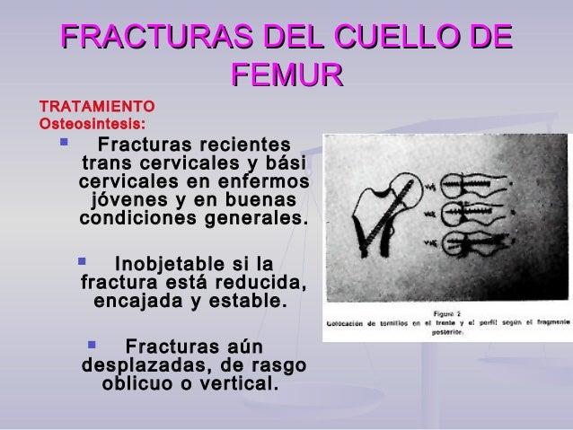 FRACTURAS DEL CUELLO DEFRACTURAS DEL CUELLO DE FEMURFEMUR TRATAMIENTO  Paciente en decúbito supino se realiza acceso exte...