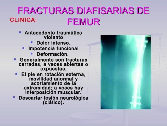 FRACTURAS DIAFISARIAS DEFRACTURAS DIAFISARIAS DE FEMURFEMUR A nivel de diafisis:  Enclavado intramedular con o sin fresad...