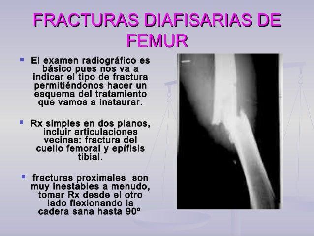 Paciente de 35 años con fractura de la diáfisis femoral, manejado con clavo intramedular bloqueado con consolidación a las...