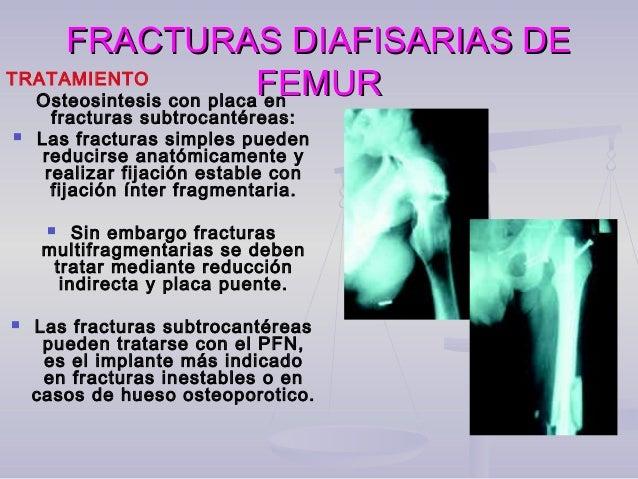 FRACTURAS DIAFISARIAS DEFRACTURAS DIAFISARIAS DE FEMURFEMURComplicaciones y secuelas: a. Rigidez de la rodilla. b. Fractur...