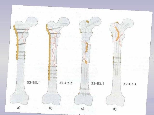 FRACTURA DE FEMUR DISTALFRACTURA DE FEMUR DISTAL  Representan el 6% de todas las fracturas femorales.  Después de trauma...