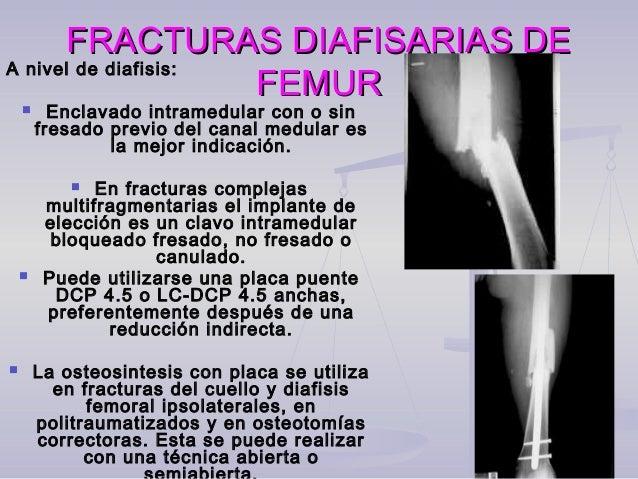 FRACTURA DE FEMUR DISTALFRACTURA DE FEMUR DISTAL Clasificación AO:Clasificación AO: