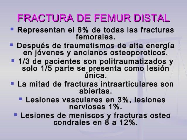 FRACTURA DE FEMUR DISTALFRACTURA DE FEMUR DISTAL  El principio en el tratamiento se basa en la reducción de fragmentos ar...