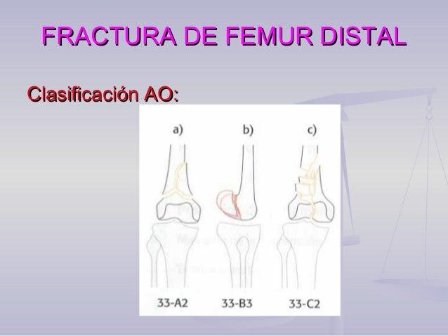 FRACTURA DE FEMUR DISTALFRACTURA DE FEMUR DISTAL  En tratamiento de fracturas extra articulares complejas y fracturas int...