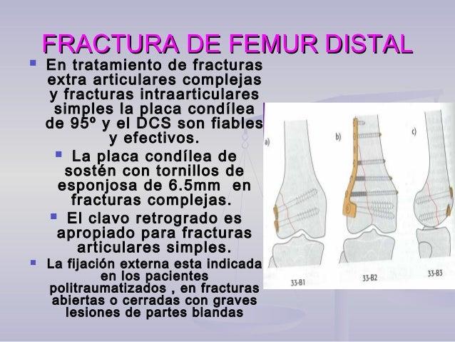 SEGMENTO MEDIO OSEGMENTO MEDIO O DIAFISIARIO: TIBIADIAFISIARIO: TIBIA  En las fracturas simples (espiroideas, oblicuas, e...
