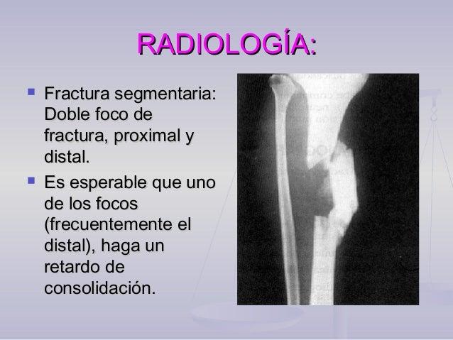 TRATAMIENTO:TRATAMIENTO:Fractura expuesta.  Existe un plazo quirúrgico de 6 horas Fractura expuesta en vías de exponerse....