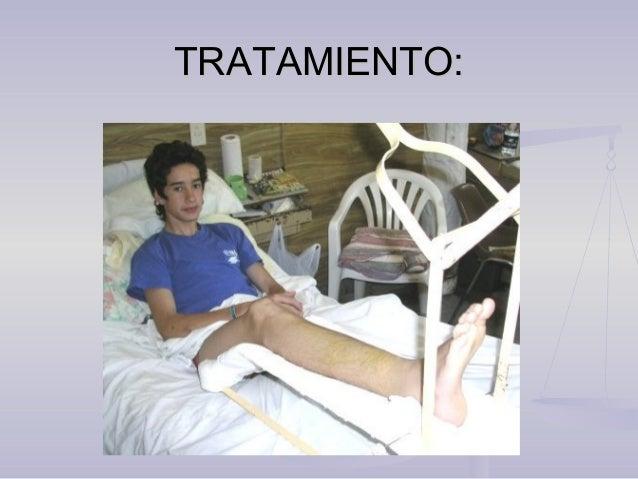 TRATAMIENTO:TRATAMIENTO: Tratamiento ortopédico Enfermo sentado con ambas piernas colgando en el borde de la camilla.. Méd...