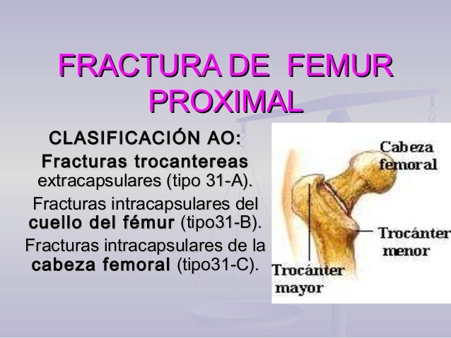 FRACTURA DE FEMURFRACTURA DE FEMUR PROXIMALPROXIMAL CLASIFICACIÓN AO:CLASIFICACIÓN AO: Fracturas trocantereasFracturas tro...