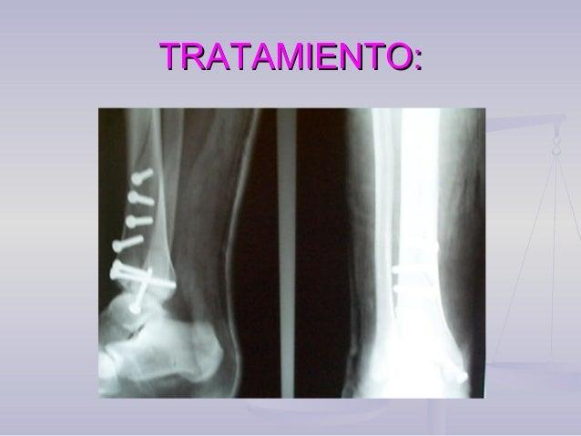 TRATAMIENTO FUNCIONAL INCRUENTO DE LAS ESTRUCTURAS A LO SARMIENTO Y FERNANDEZ ESTEVE : Indicaciones: Fracturas diafisiaria...