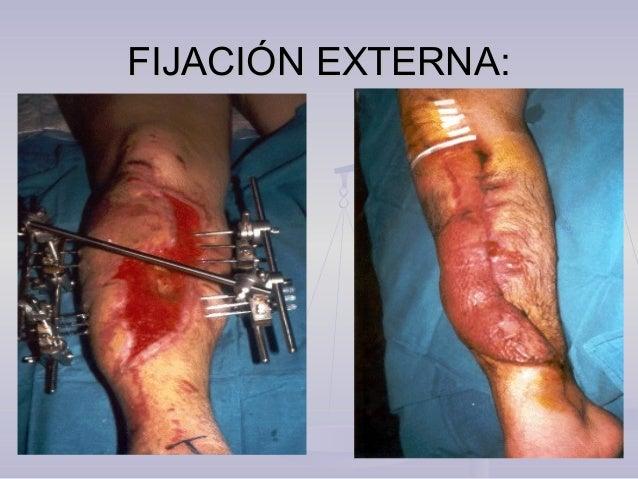 COMPLICACIONES:COMPLICACIONES: Seudo artrosis: Es muy común sobretodo por osteosíntesis infectada ,fracturas expuestas y o...