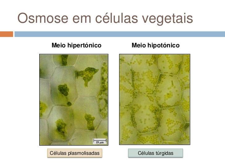 Osmose em células vegetais     Meio hipertónico       Meio hipotónico    Células plasmolisadas    Células túrgidas