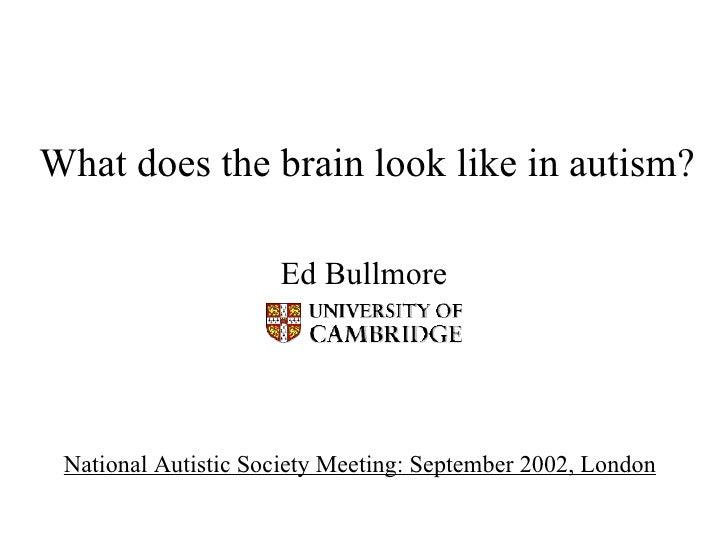 What does the brain look like in autism? Ed Bullmore National Autistic Society Meeting: September 2002, London