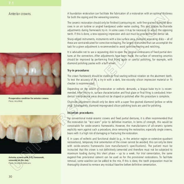 Anterior Anatomy And The Science Of A Natural Smile Pdf Download ...