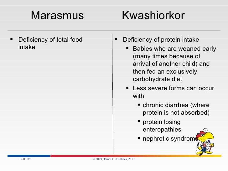 Marasmus Vs Kwashiorkor And Cachexia
