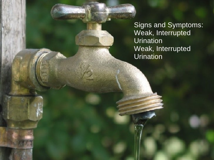 Signs and Symptoms:  Weak, Interrupted Urination Weak, Interrupted Urination