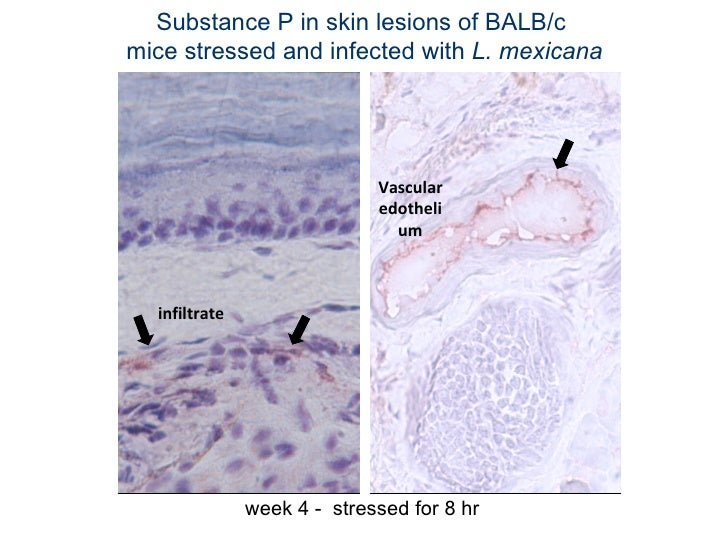 Substance P in skin lesions of BALB/c  mice stressed and infected with  L. mexicana week 4 -  stressed for 8 hr Vascular e...