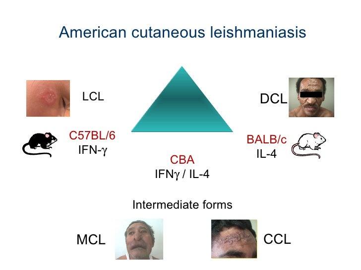 American cutaneous leishmaniasis C57BL/6 IFN-  BALB/c IL-4 LCL Intermediate forms MCL CCL DCL C BA IFN   / IL-4