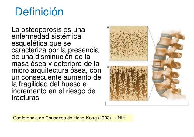 2010 osteoporosis for Que es arquitectura definicion