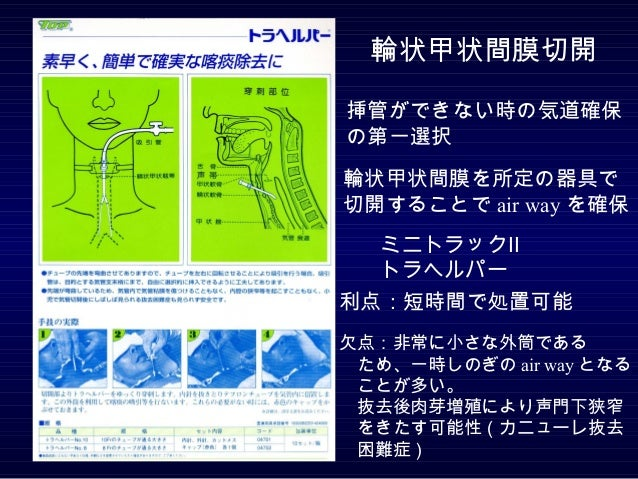 輪状甲状間膜切開挿管ができない時の気道確保の第一... 気管切開術とカニューレ Slides